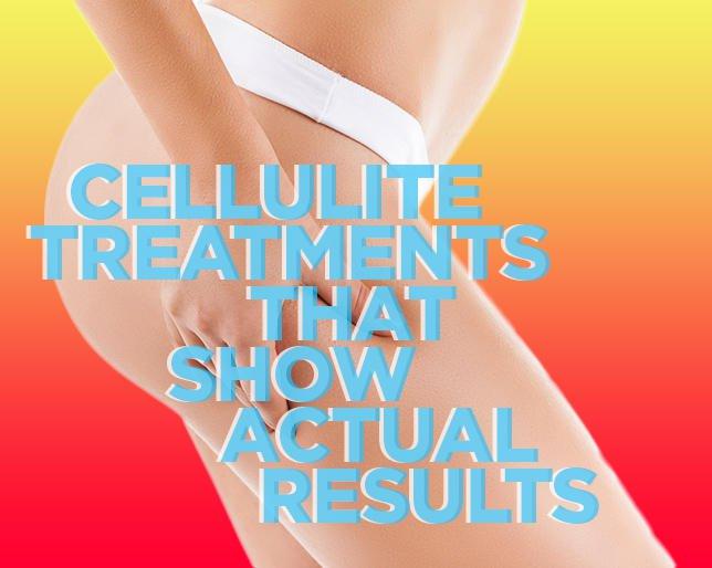 7 tratamente pentru celulita